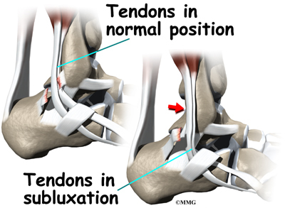 Peroneal Tendon Syndromes Clinical Presentation: History, Physical ...