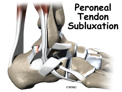 Thoughts of an Experienced Sports Physical Therapist: Peroneal ...