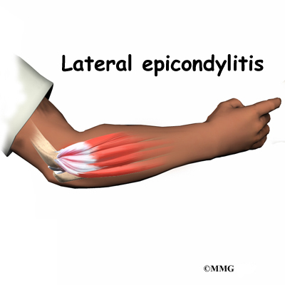 Epicondyle Splint Related Keywords & Suggestions - Epicondyle ...