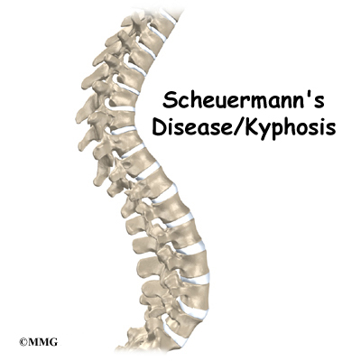 Scheuermann's Kyphosis: Non-Operative and Surgical Treatment ...
