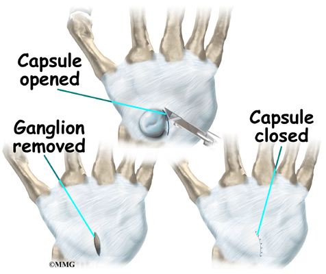 This image has an empty alt attribute; its file name is wrist_ganglion_treatment02.jpg