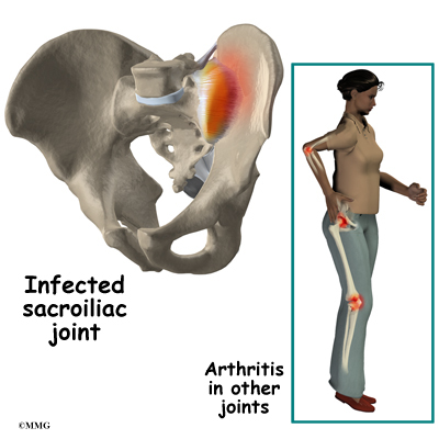 Sacroiliac Joint Dysfunction | eOrthopod.com