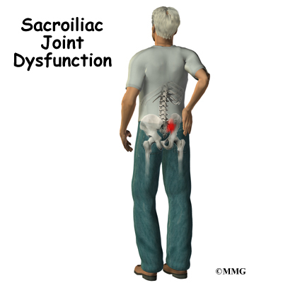 sacroiliac joint dysfunction | eorthopod, Human Body
