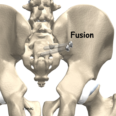 Sacroiliac Joint Dysfunction Eorthopod Com