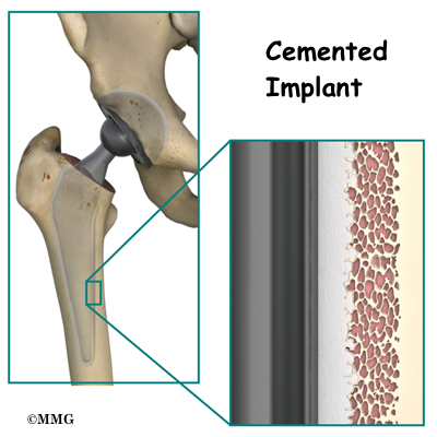 Artificial Joint Replacement Of The Hip Anterior Approach
