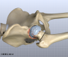 Artificial Joint Replacement of the Hip, Anterior Approach