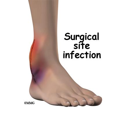 Postsurgical Infection | eOrthopod com