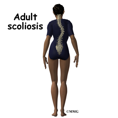 scoliosis Adult in