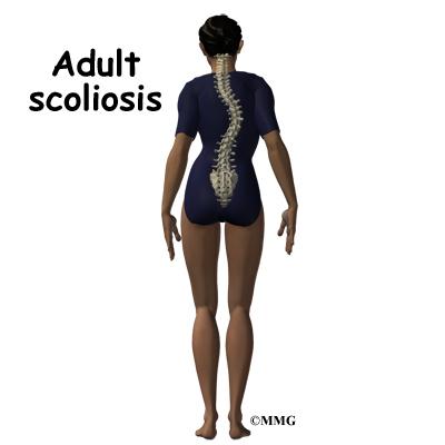 Mild adult scoliosis