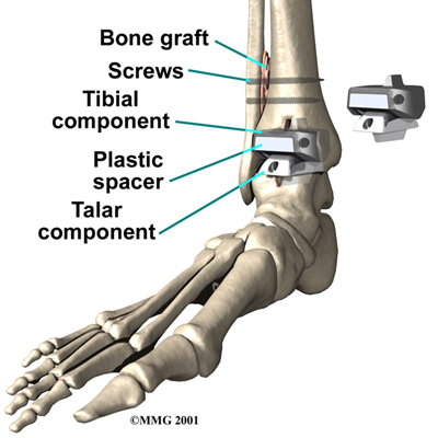 14 on ankle replacement diagram