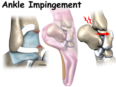 Ankle Impingement Problems