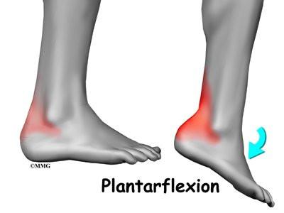 Ankle Impingement Eorthopod
