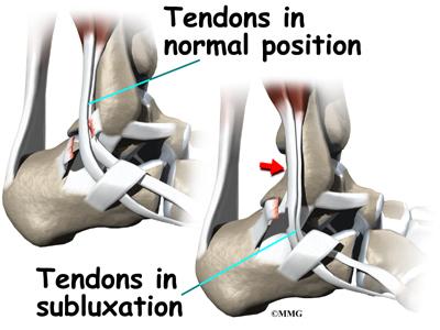 Peroneal Tendon Subluxation Eorthopod
