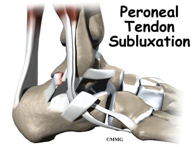 Peroneal Tendon Subluxation