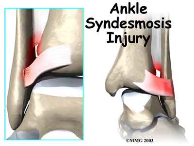 ankle sprain   eorthopod, Human Body