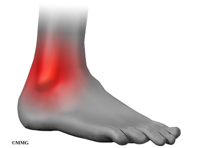 High Ankle Sprain - Ankle Syndesmosis | eOrthopod.com