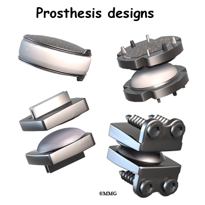 Spinal cord connection prothesis