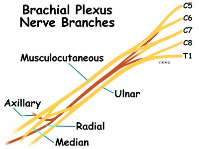 Cervical Burners and Stingers (Brachial Plexus Injuries ...