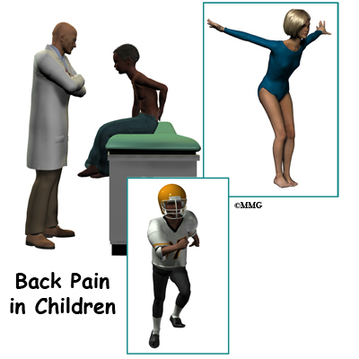 Back Pain in Children