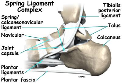 Congenital Flatfoot (Pes Planus) in Children