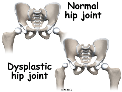 Developmental Dysplasia of the Hip in Children | eOrthopod.com