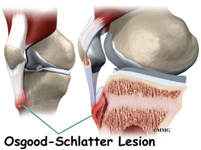 Osgood–Schlatter disease - Wikipedia