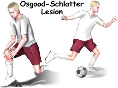 Osgood Schlatter Disease Brace