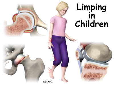 Limping in Children