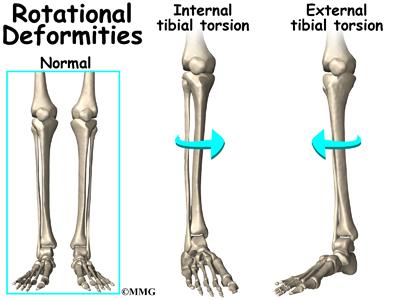 Image result for knee external rotation