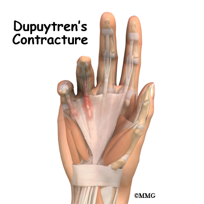Dupuytren's Contracture | eOrthopod.com