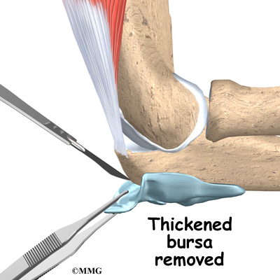 Best Natural Treatment For Tennis Elbow
