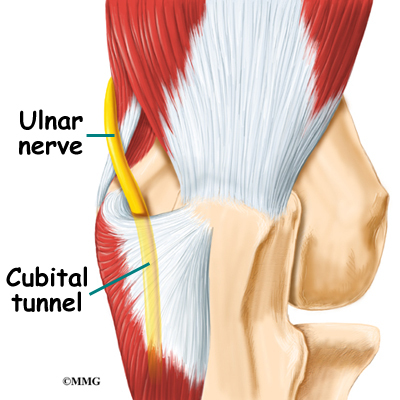 Cubital Tunnel Syndrome Eorthopod