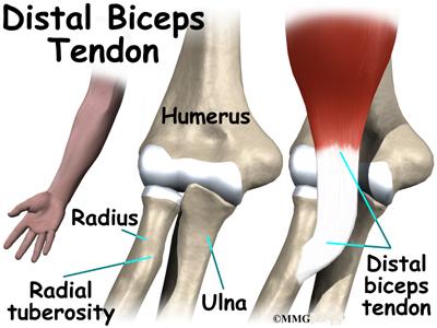 Distal Biceps Rupture Eorthopod