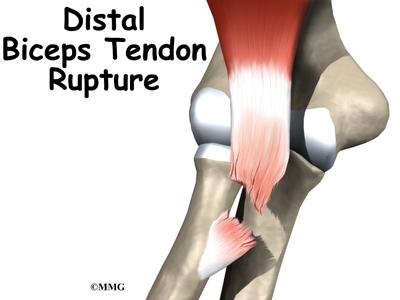 Distal Biceps Rupture