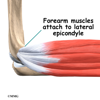 Tennis Elbow Eorthopod
