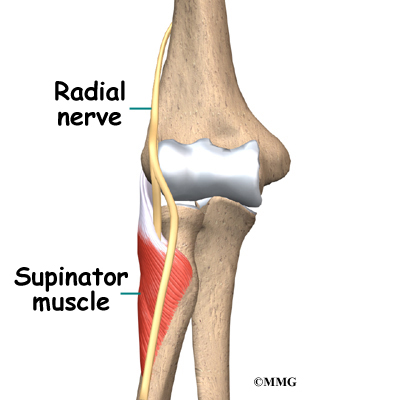 Radial Tunnel Syndrome | eOrthopod.com