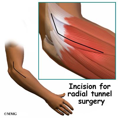 Radial Tunnel Syndrome | eOrthopod.com