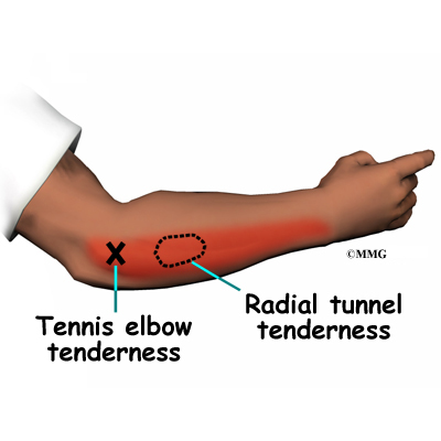 Radial Tunnel Syndrome eOrthopodcom
