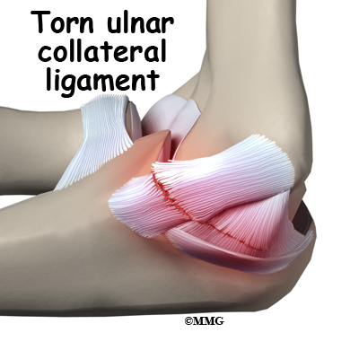 Ulnar Collateral Ligament Diagram - Block And Schematic Diagrams •