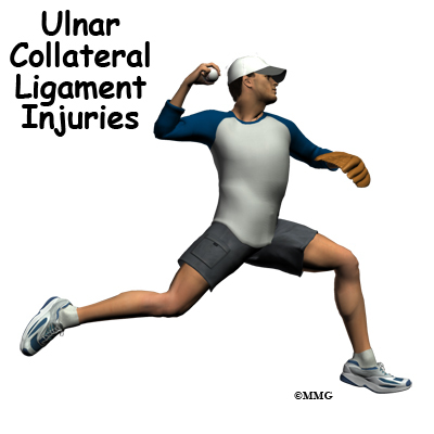 Ulnar Collateral Ligament Injuries