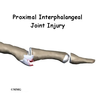 PIP Joint Injuries of the Finger
