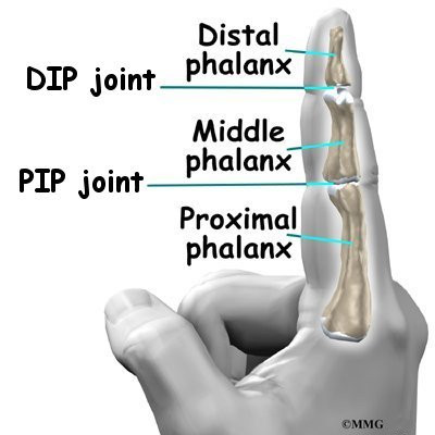Artificial Joint Replacement Of The Finger Eorthopod