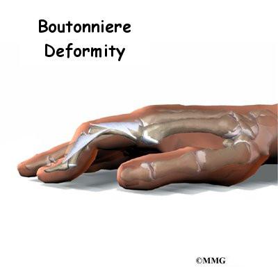 Finger Boutonniere Deformity