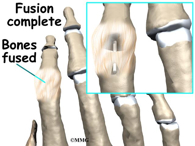 Finger Fusion Surgery Eorthopod