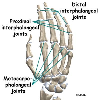 Mallet Finger Injuries | eOrthopod.com
