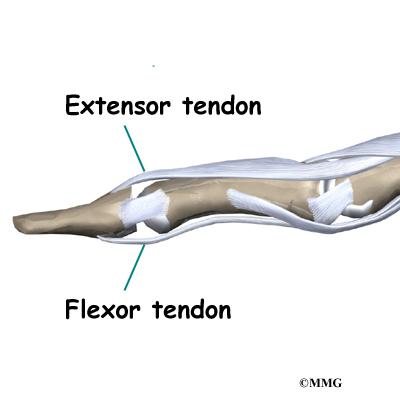 Mallet Finger Injuries Eorthopod