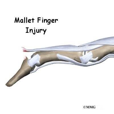 Mallet Finger Injuries