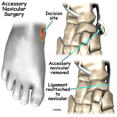 Accessory Navicular Problems | eOrthopod.com