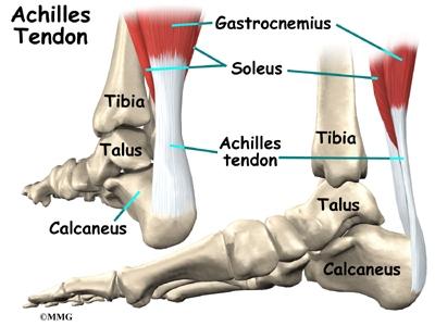 Achilles Tendon Problems | eOrthopod.com