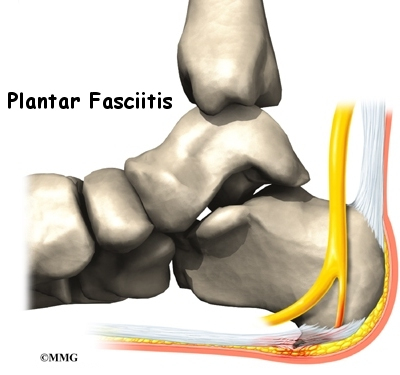what can i do for plantar fasciitis